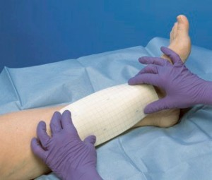 Venous leg ulcer dressing