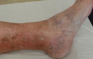 Venous leg ulcer - healed